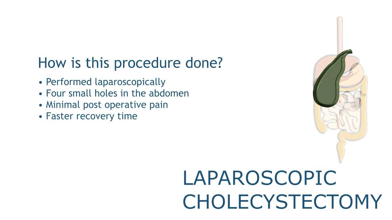 Lap Chole   Laparoscopic Surgery   MUSC DDC