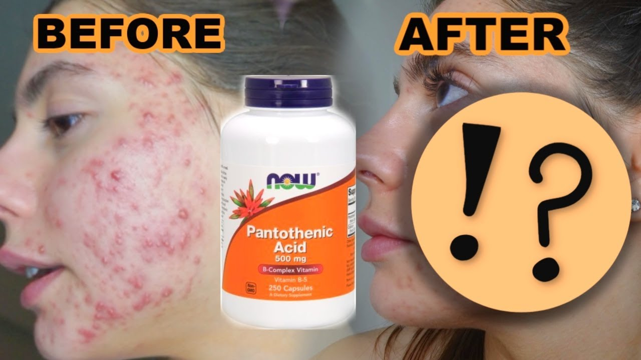 3 Months Of Taking Pantothenic Acid For My Acne Is It Worth It Youtube