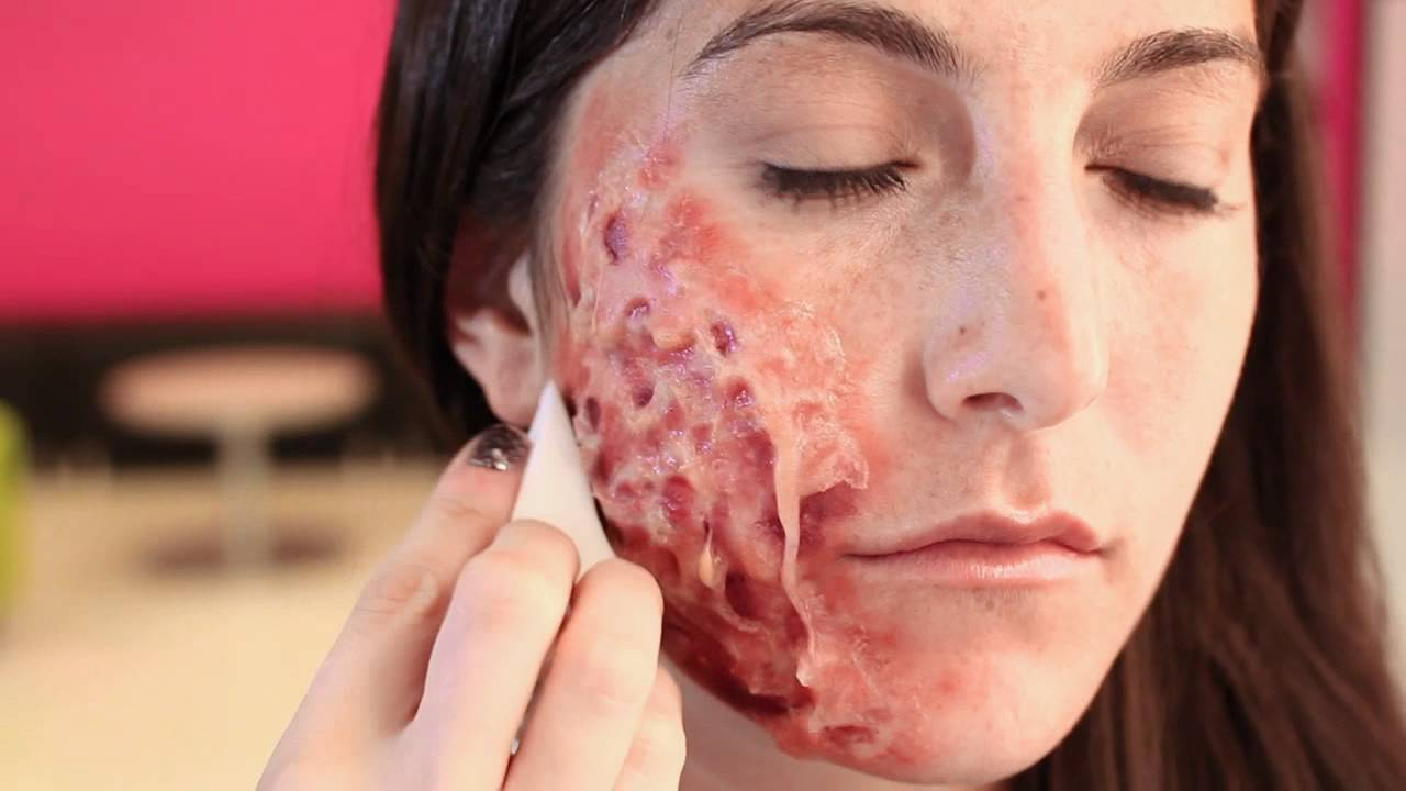 how to make wounds heal faster on face