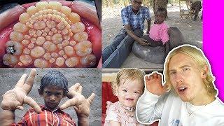 10 barn med OVANLIGA sjukdomar du inte trodde fanns