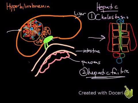 hepatic & post-hepatic hyperbilirubinemia