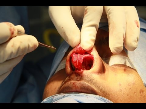 RHINOPLASTY IN INDIA- BREAKING BONES IN THE NOSE - Dr Paulose FRCS (ENT)