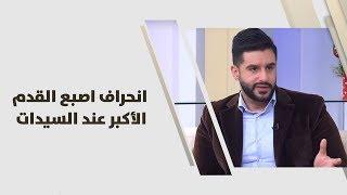 د. أحمد صادق العموري - انحراف اصبع القدم الأكبر عند السيدات