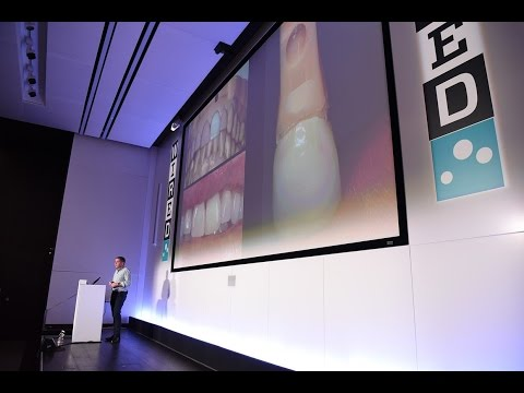 3D-Printing Dentists are Recreating Entire Jaws | Health | WIRED