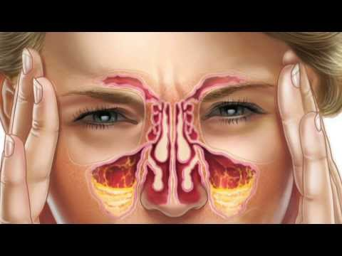 How to wash your sinuses with FLO Sinus Care