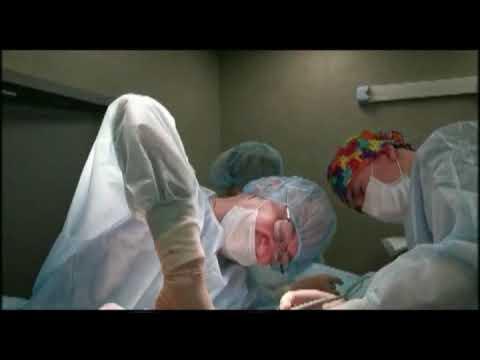 Не лучше ли отказаться от увеличения груди? | Разговор в операционной | Часть 5