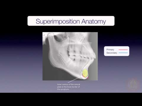 Mandibular Superimposition