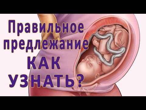 Предлежание плода. Внутриутробная гипоксия и обвитие пуповиной
