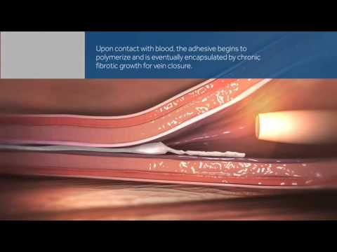 Experience the VenaSeal™ Closure System   Medtronic