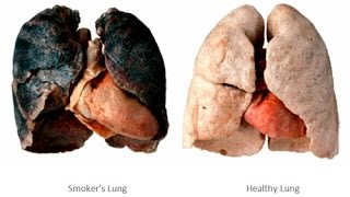 Video Quit Smoking: Smoking Kills Watch Effects Of Smoking Cigarettes on Lungs & Side Effects Of Smoking download MP3, 3GP, MP4, WEBM, AVI, FLV Mei 2018
