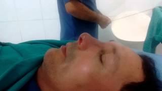 Resultado inmediato de rinoplastia en cirplasperfi