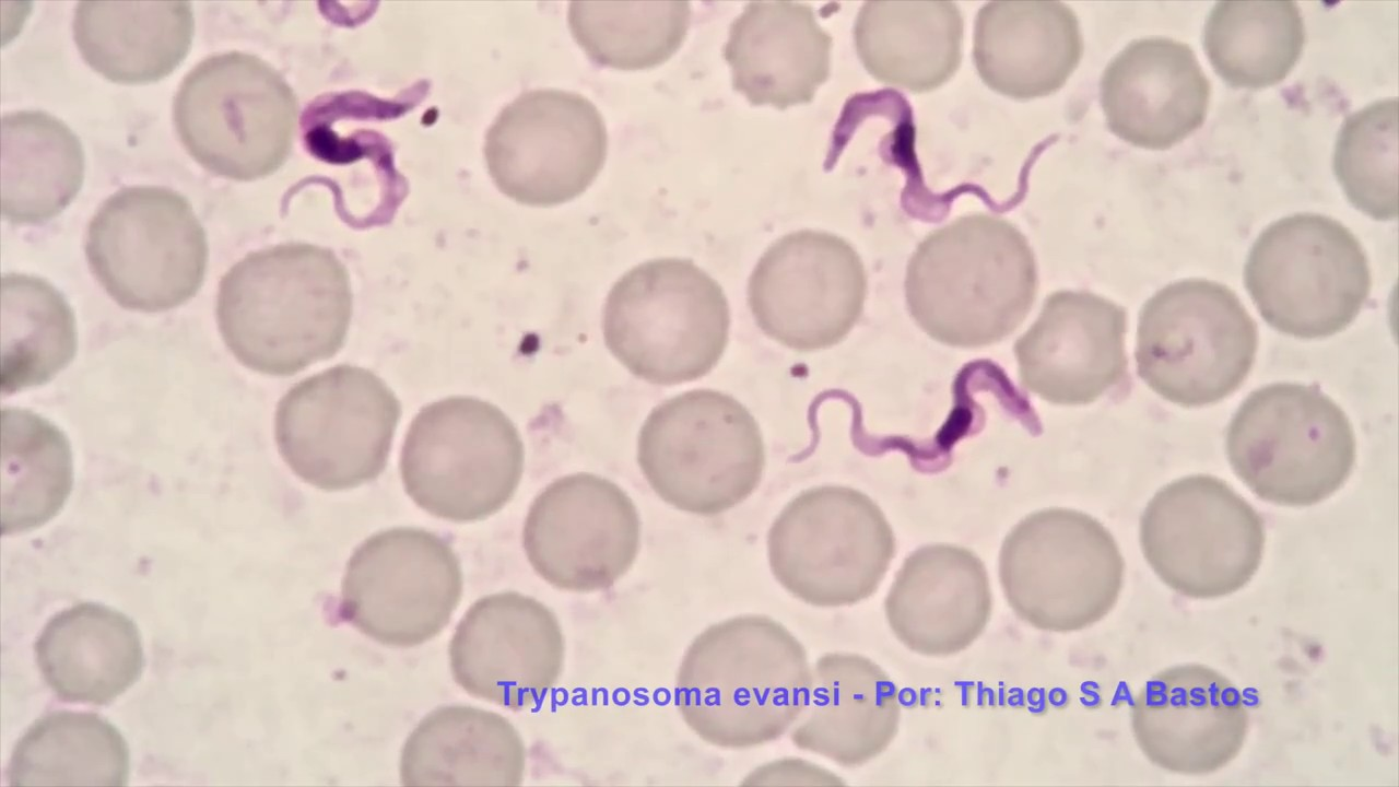Trypanosoma Evansi Youtube