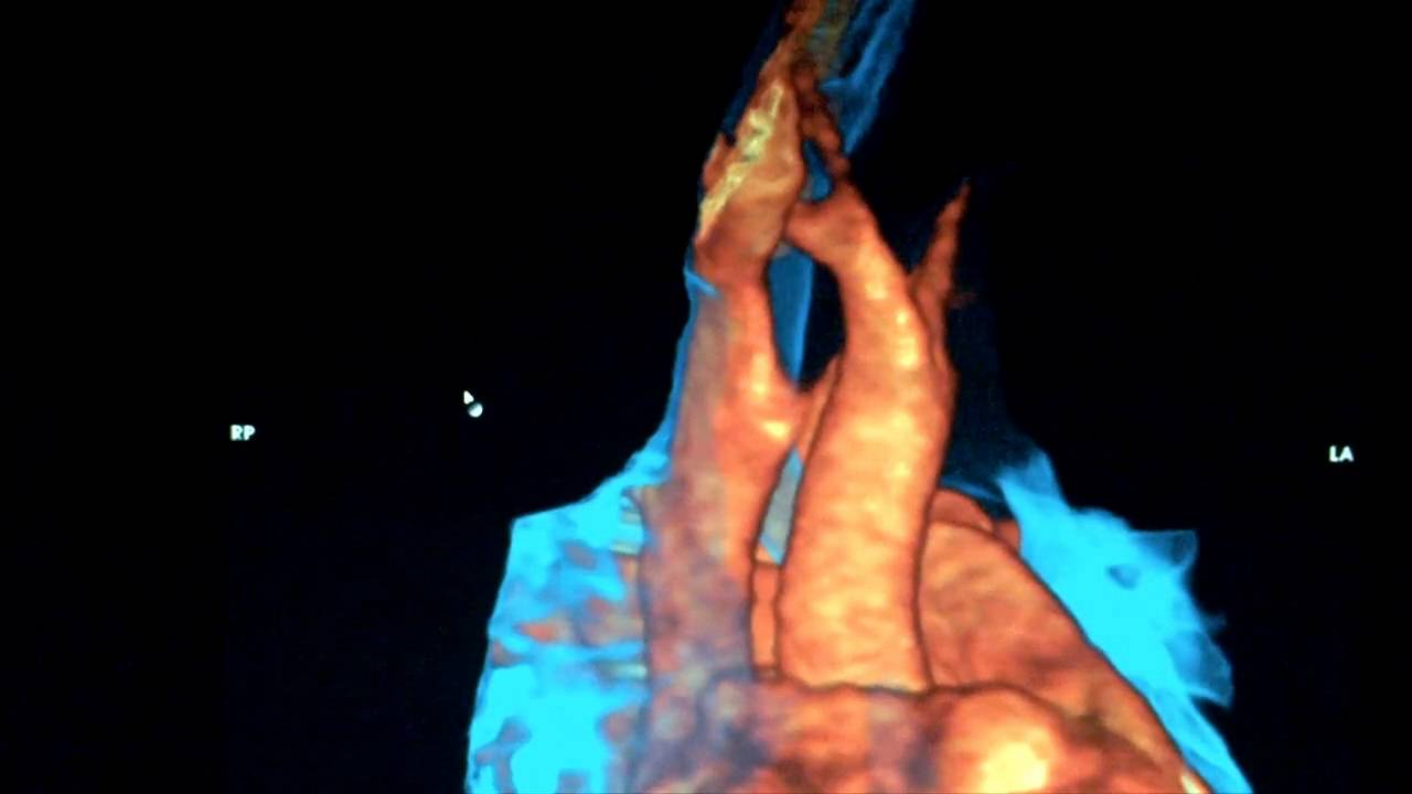 3D MRI reconstruction tracheal compression - YouTube