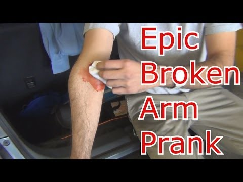 Epic Broken Arm Prank!!!