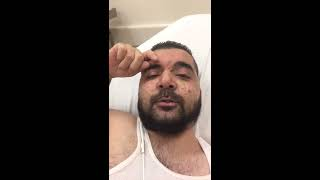 Huge abscess in the armpit, Hidradenitis suppurativa, armpit surgery, painful cyst drainage , HS,