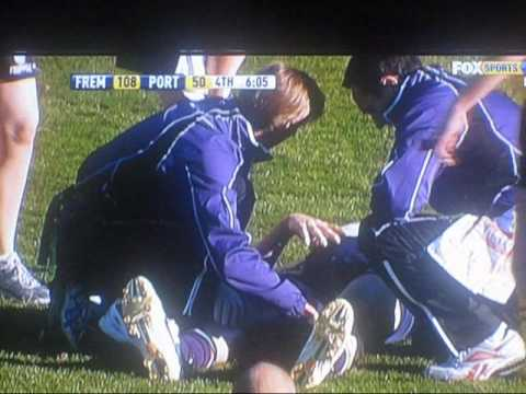 Michael Barlow breaking his leg vs port adeliade