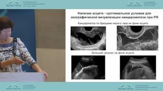Изучение асцита при раке яичников – новая перспектива в научных исследованиях и лечении