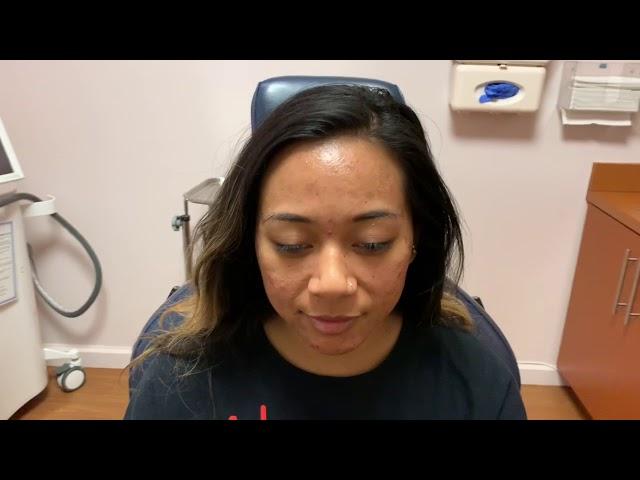 Dallas Botox for Cystic Acne Correction