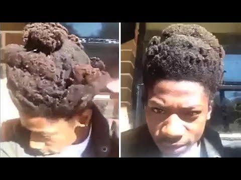 Questo ragazzo non si lava i capelli da 3 anni, ecco il risultato terribile