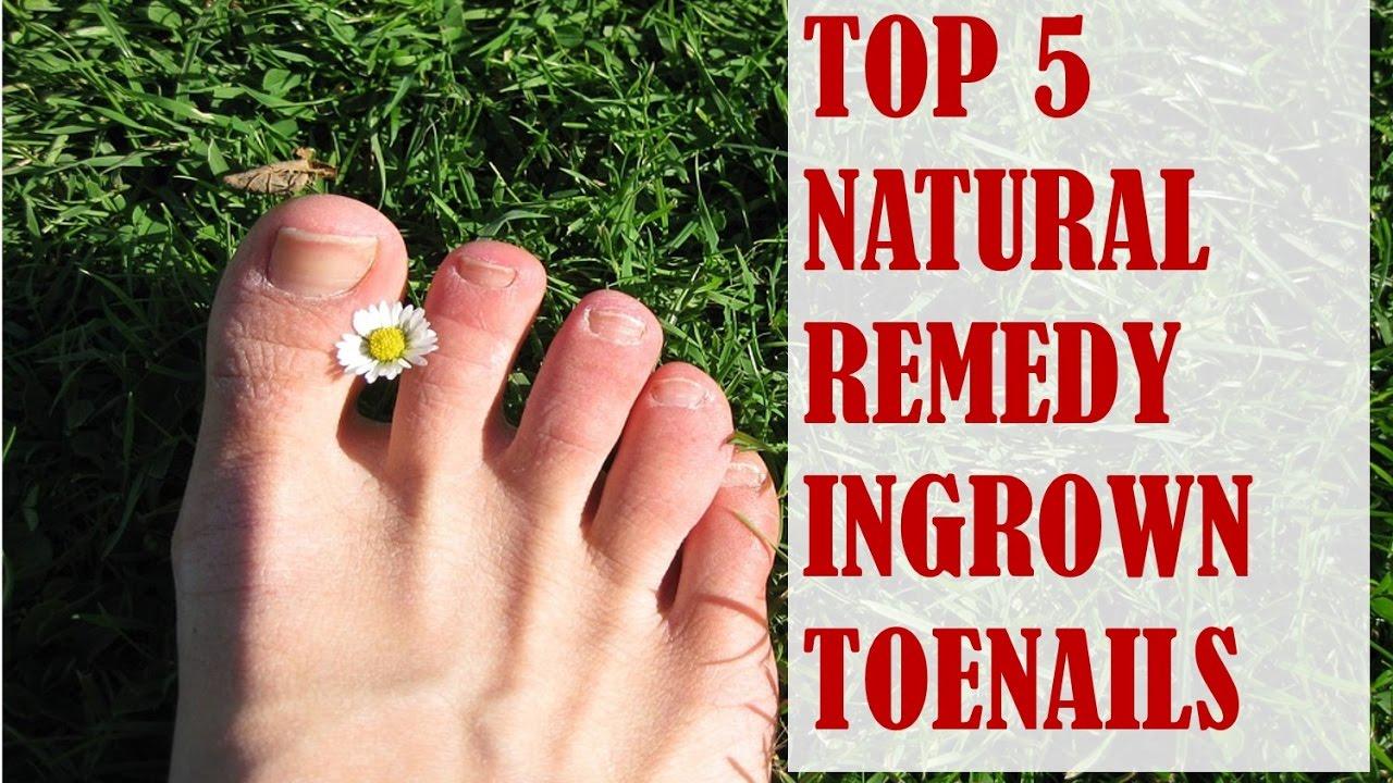 Top 5 natural remedies for ingrown toenails youtube pooptronica