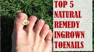 Top 5 Natural Remedies for Ingrown Toenails