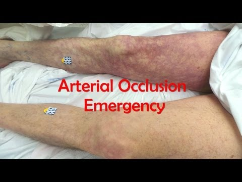 Acute, Complete Occlusion of the Leg Arteries