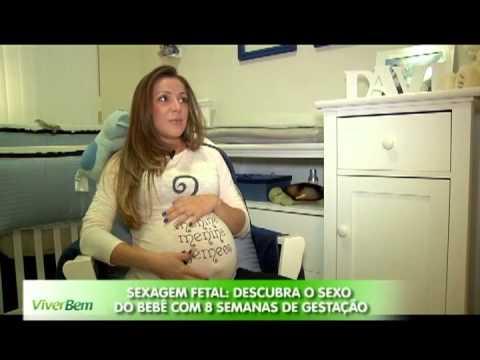 Exame sexagem fetal bh