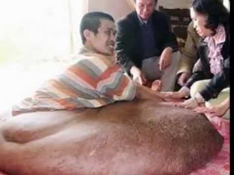 ЭТО ШОКИРУЕТ!!!Человек живет с опухолью весом 80 кг!