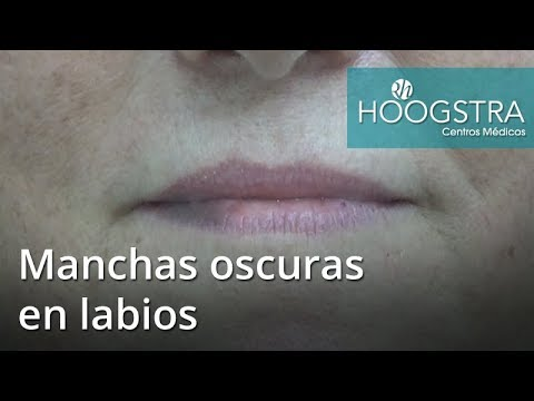 Manchas oscuras en labios (17044)