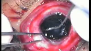 evisceration eye surgery - Vision Eye Centre
