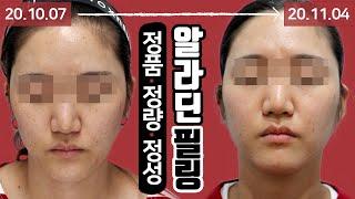 여드름고민 해결 알라딘필링 시술 영상 톡스앤필 인천부평…