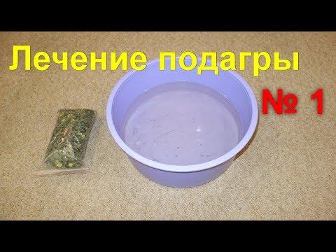 Подагра. Как вывести мочевую кислоту. Лечение подагры без лекарств в домашних условиях -метод №1