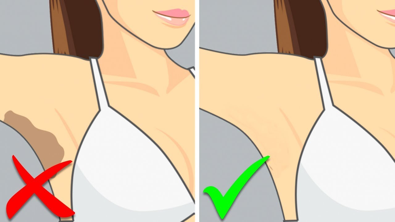 How to Whiten Dark Underarms Naturally at Home