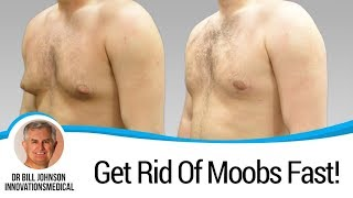 MOOBS - Male Breast Liposuction - Dr. Bill Johnson - Man Boobs | Gynecomastia
