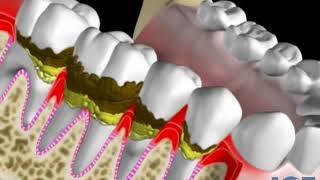 špatná ústní hygiena a jeji výsledky