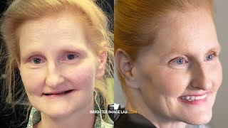 Miracle Smile Makeover for Daughter's Wedding by Brighter Image Lab!