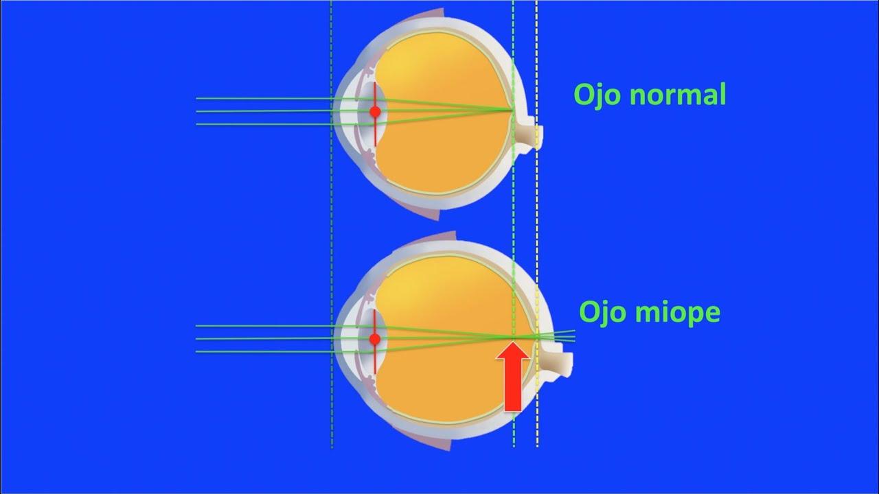 video miopie hipermetropie