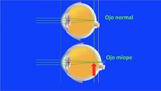 Optica ocular: miopía, hipermetropía y astigmatismo. Centro de Oftalmología Bonafonte. Barcelona.