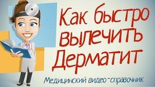 видео Лечение экземы народными средствами в домашних условиях у взрослых и детей
