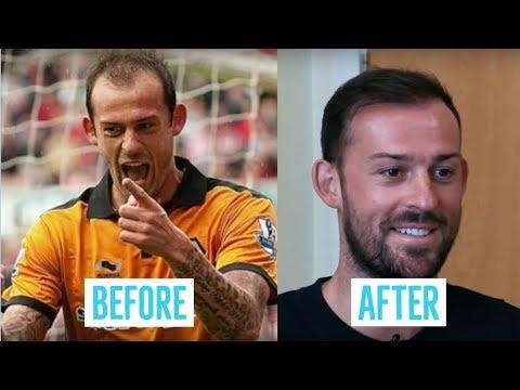 Steven Fletcher's Hair Transplant Story