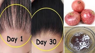 How To Grow Long & Stop Hair Fall With Onion & Egg|Magical Hair Growth Treatment 100% Works