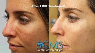 actual bbl patient julieta ferrero has amazing results