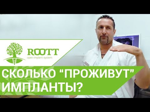 Зубные импланты. Сколько прослужат импланты?  Клиника ROOTT