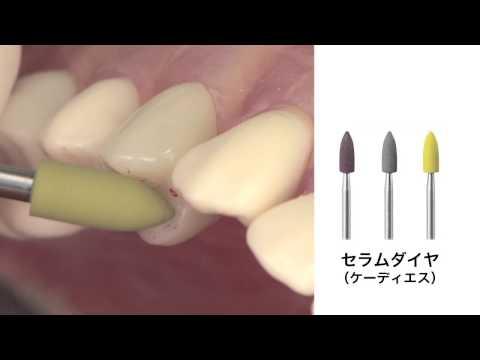 カタナ アベンシア ブロック 臨床のポイント~口腔内研磨について~