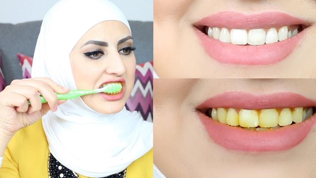 خلطة لتبييض الاسنان من أول استخدام لازم الكل يجربها Youtube