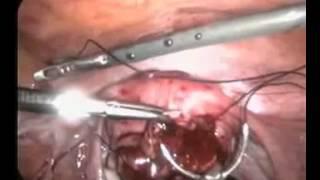 Laparoskopik Myomektomi 2