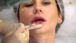 Увеличение губ гиалуроновой кислотой без операции, до и после - видео. Рестилайн Restylane(Увеличение губ гиалуроновой кислотой без операции - до и после - коррекция формы губ. Препарат - Restylane ( Рести..., 2014-12-15T13:51:35.000Z)