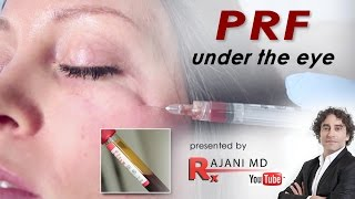 PRF Microcannula Eye Injections-Dr Rajani
