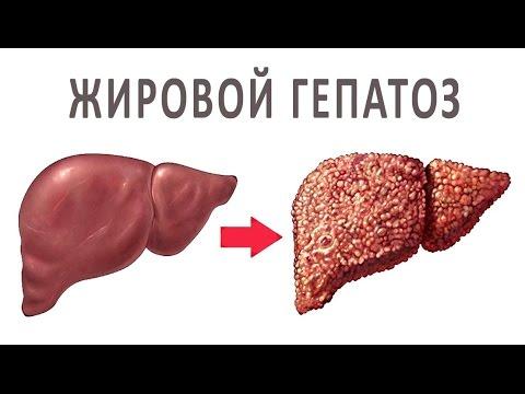 Гепатоз печени при сахарном диабете