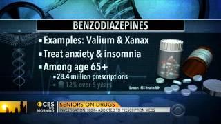 Mi az az artrózis? | BENU Gyógyszertárak - Gyógyszereket vásárolni az artrózishoz